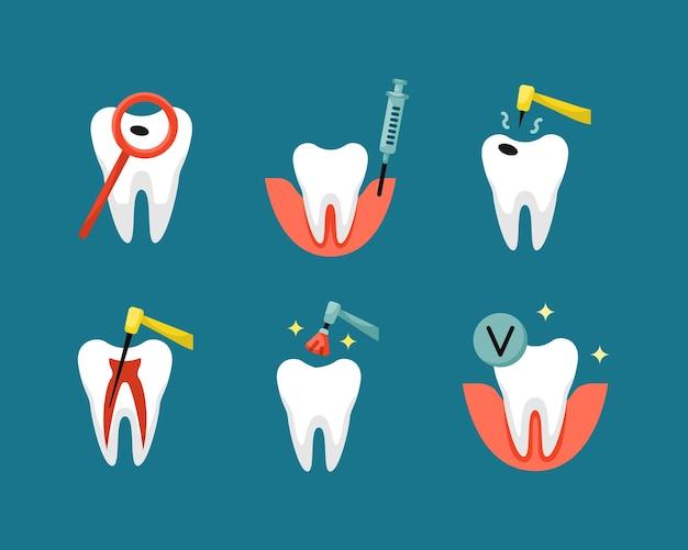 Insieme di vettore delle icone piane di odontoiatria. trattamento della pulpite