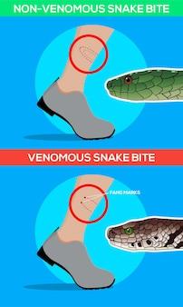Morso di serpente velenoso e non velenoso nella gamba Vettore Premium