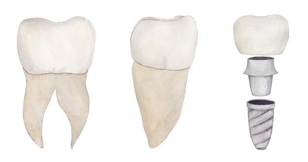 Insieme dell'acquerello della corona dei denti con il perno