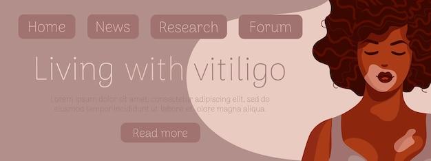 Modello di banner web donna afroamericana vitiligine pelle scura riccia depigmentazione positiva del corpo