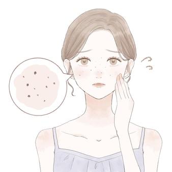 Una donna che soffre di pori scuri. su uno sfondo bianco.