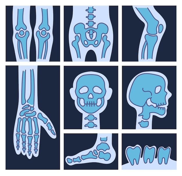 X ray scheletro ossa cranio piede dito gamba dente isolato set
