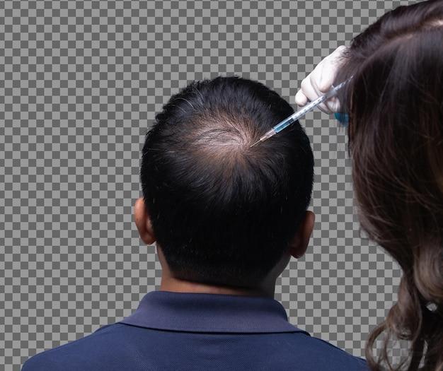 Estética doctor inyecta vitaminas de suero de tratamiento en el área de caída del cabello en la cabeza con una jeringa, clínica de terapia de control de pérdida de cabello corto para evitar caídas en el trabajo hombre mayor mujer, iluminación de estudio aislada