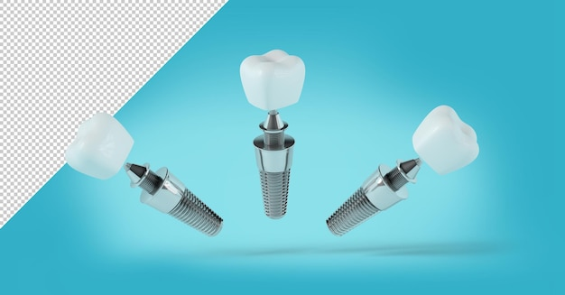 Maquete de implante dentário em diferentes posições em fundo azul