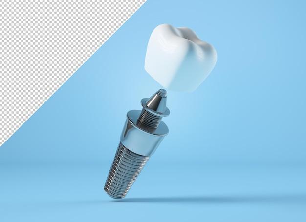 Maquete de implante dentário