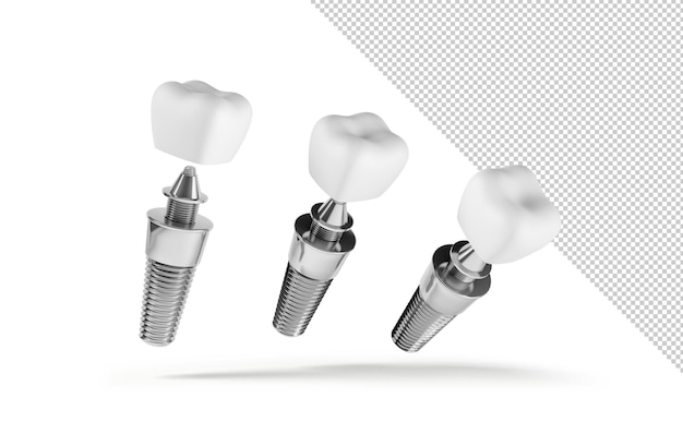 Maquete de três implantes dentários