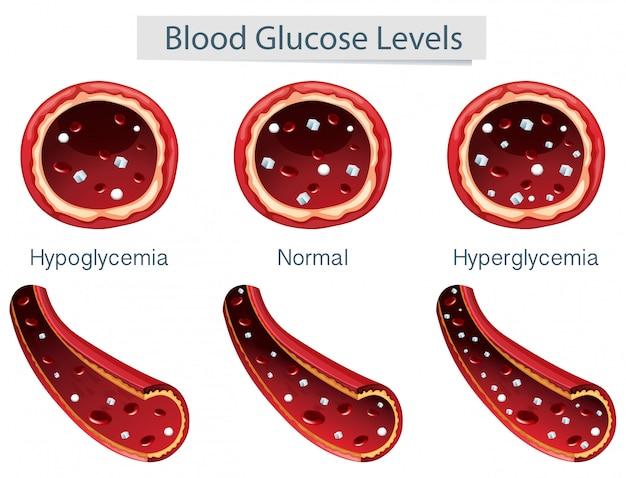 3 différents niveaux de glucose sanguin