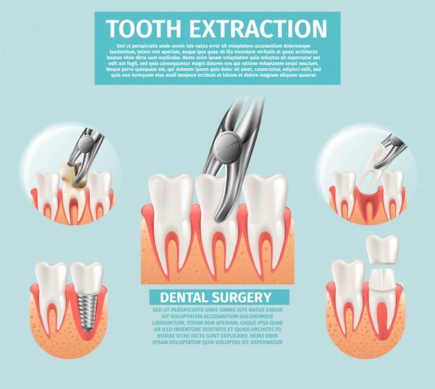 3d réaliste, illustration, extraction, dent, vecteur
