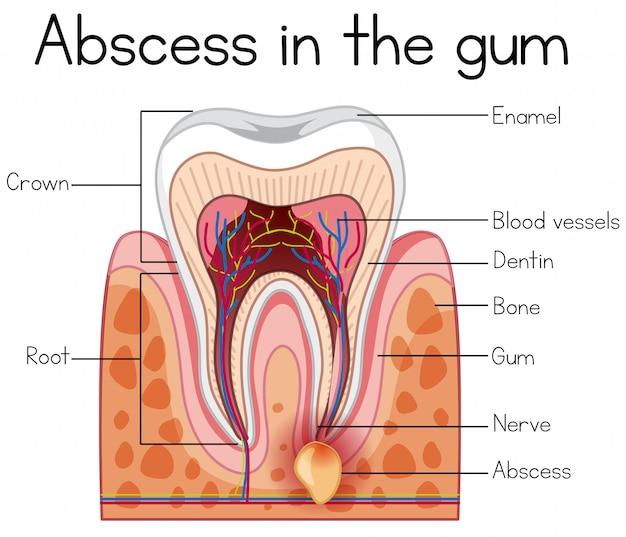 Abcès dans le diagramme des gencives