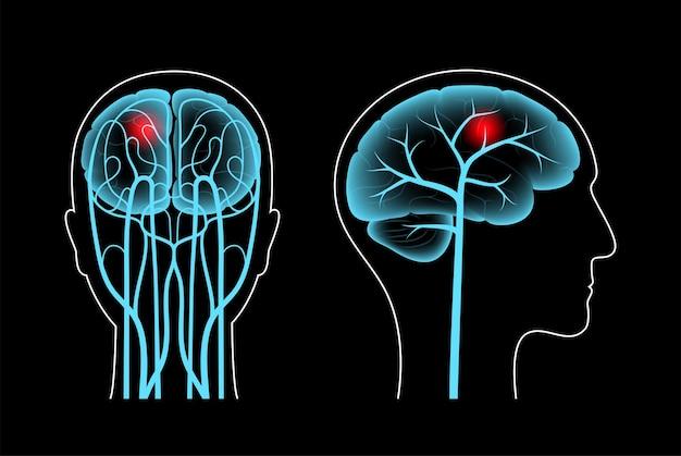 Accident vasculaire cérébral, problème hémorragique et ischémique. douleur dans la tête humaine.