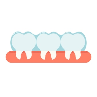 Accolades invisibles pour la correction des dents orales concept de stomatologie orthodontique