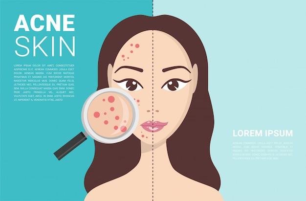 L'acné, les problèmes de peau, les stades de l'acné.
