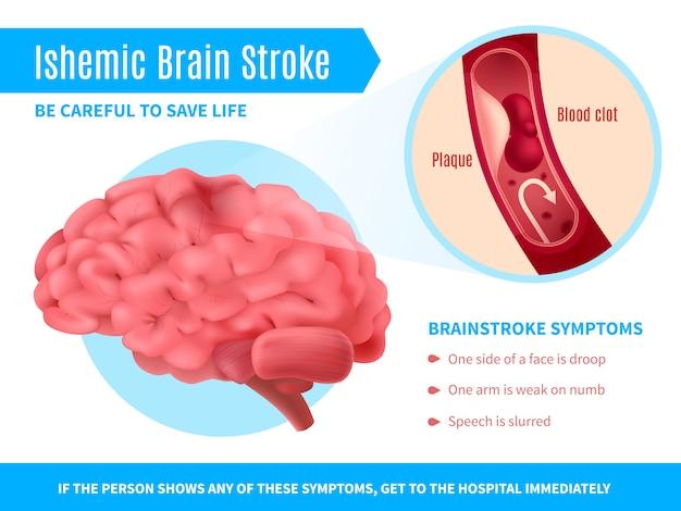 Affiche de coup de cerveau ischémique