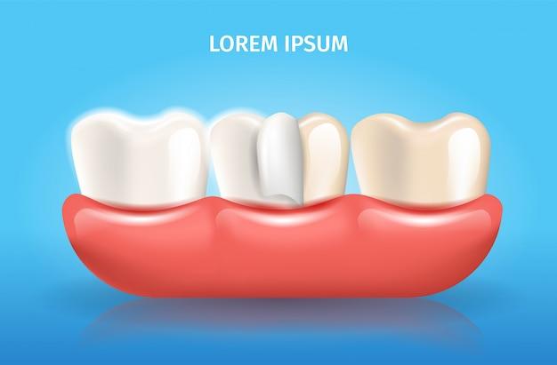 Affiche dentaire de vecteur réaliste de couche de placage