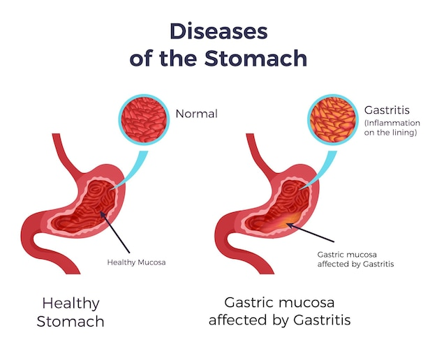 Affiche infographique de l'estomac normal humain comparé à la gastrite affectée par une muqueuse enflammée enflée