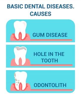 Affiche sur les maladies dentaires de base et les problèmes