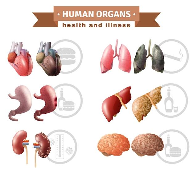 Affiche médicale sur les risques pour la santé des organes humains