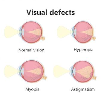 Affiche ophtalmique, défauts oculaires.