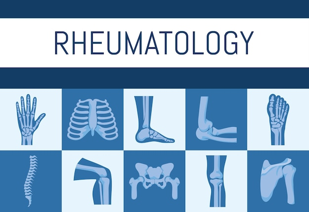 Affiche d'os de rhumatologie
