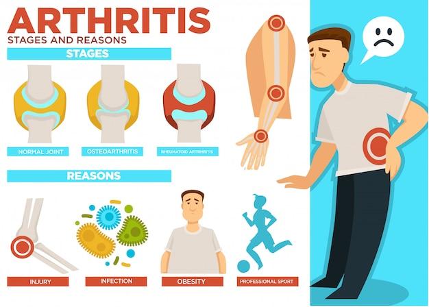 Affiche sur les stades de l'arthrite et les raisons de la maladie
