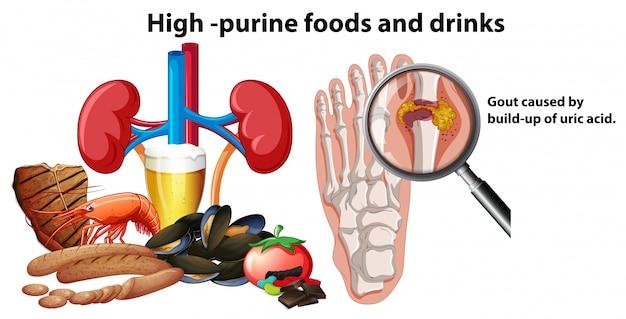 Aliments riches en purine et boissons