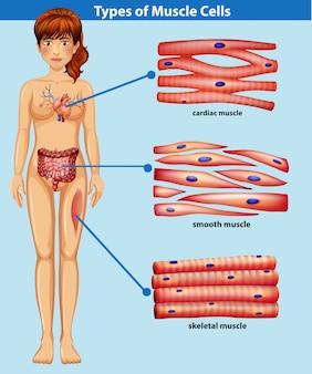 Une anatomie humaine du muscle
