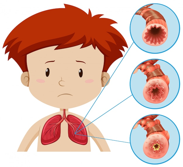 Une anatomie humaine du problème pulmonaire