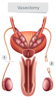 Anatomie humaine de la vasectomie sur fond blanc