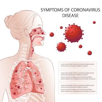 Arrêt du nouveau coronavirus (2019-ncov). facteurs de risque des symptômes mers-cov humains. une épidémie virale propage une pandémie. tests médicaux et de santé, dépistage. respiratoire, respiratoire. infographie du diagramme vectoriel
