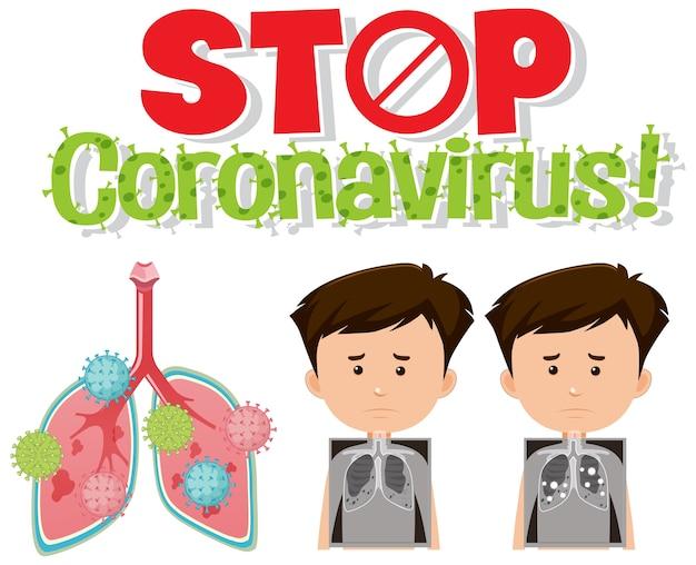 Arrêtez le logo du coronavirus avec des poumons infectés par un coronavirus