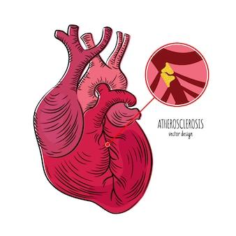 Atherosclerosis maladie maladies chroniques éducation en médecine