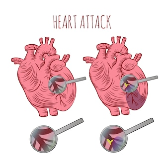 Attaque cardiaque athérosclérose médecine éducation