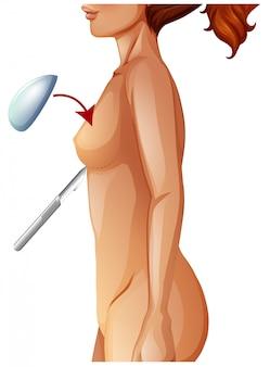Une augmentation mammaire d'anatomie humaine