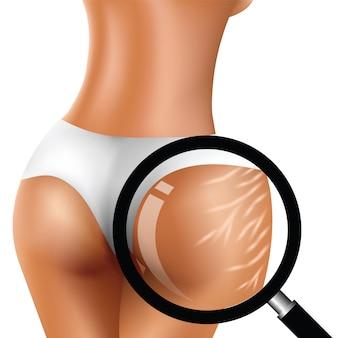 Avant et après des vergetures sur les fesses de la femme