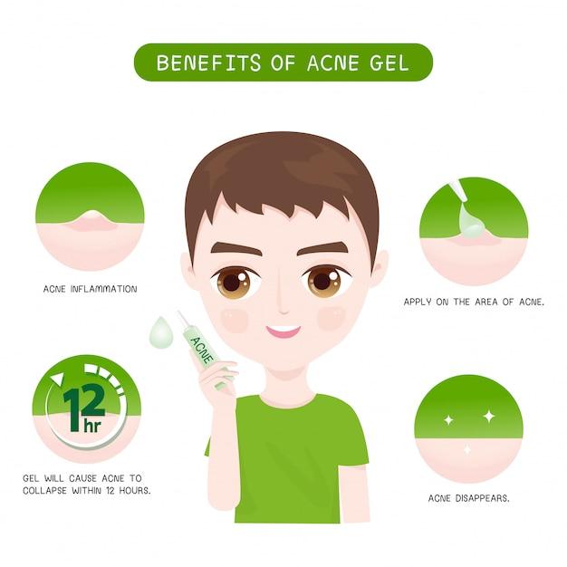 Avantages de gel acné hommes