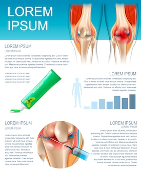 Bannière infographie méthodes de traitement de la douleur au genou