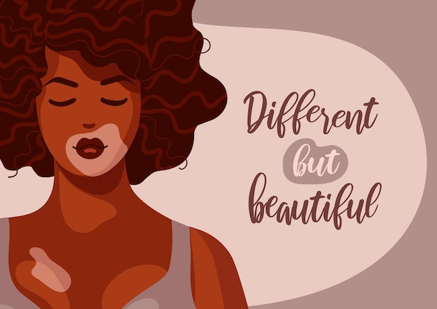 Belle femme afro-américaine vitiligo peau foncée cheveux bouclés corps dépigmentation positive