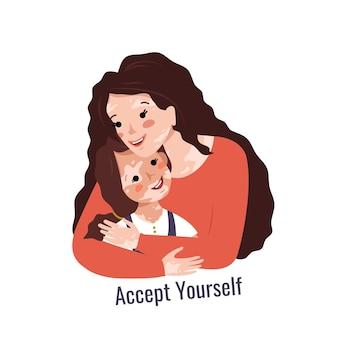 Belle mère aux cheveux longs et vitiligo embrasse sa fille inscription accepte-toi vecteur il ...