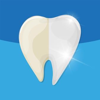 Blanchiment des dents professionnel, dent saine et jaune, illustration vectorielle. illustration médicale - soins dentaires