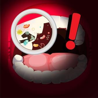 Bouche avec des bactéries. dentaire malsain