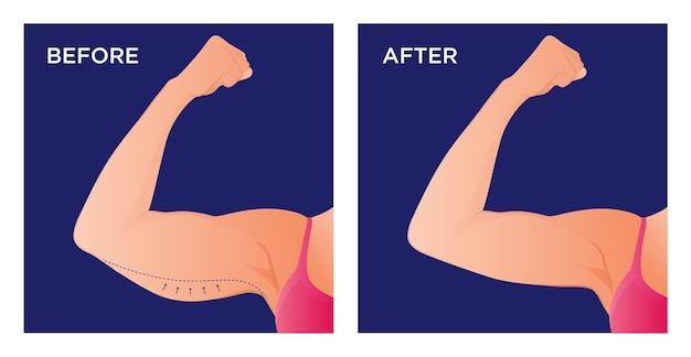 Bras avec excès de peau avant et après opération chirurgicale
