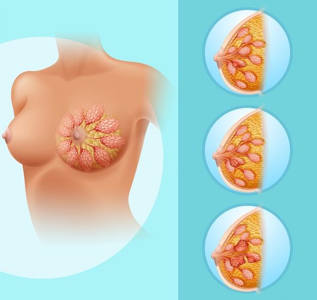 Cancer du sein chez la femme humaine