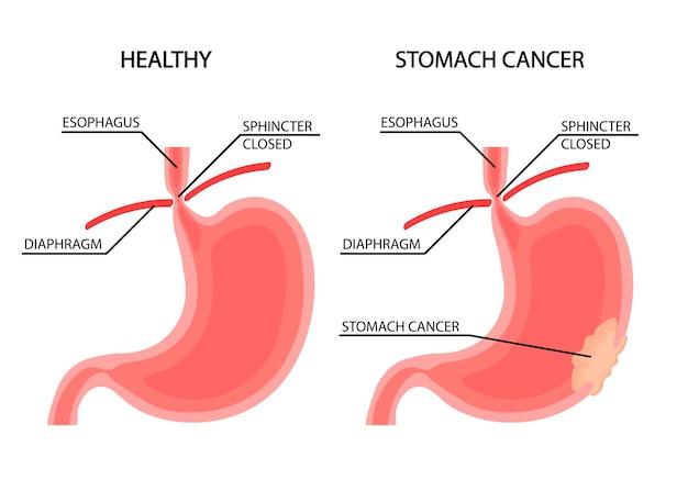 Cancer de l'estomac croissance du cancer illustration vectorielle anatomique d'un estomac avec une tumeur