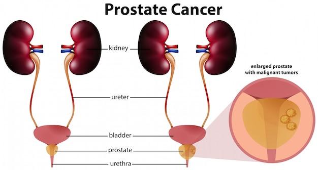 Cancer de la prostate sur fond blanc