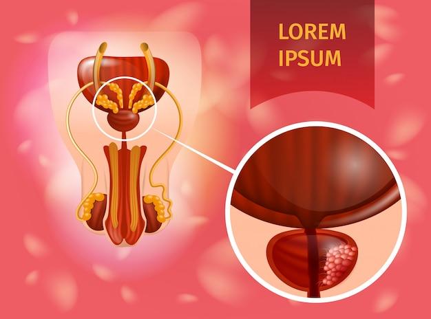 Cancer De La Prostate Vecteur Premium