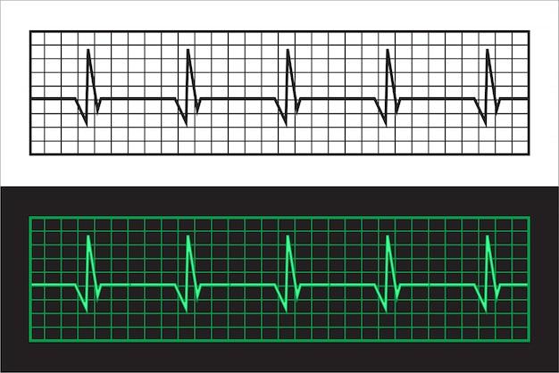 Cardiogrammes à bande