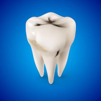 Carie des dents