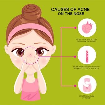 Cause de l'acné sur le nez