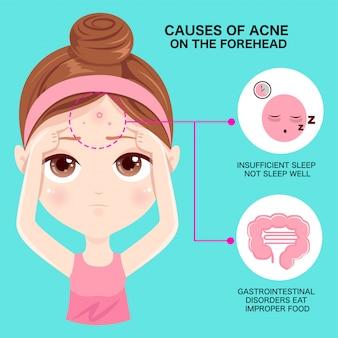 Causes de l'acné sur le front