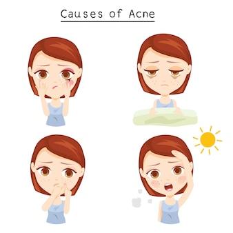 Causes de l'acné